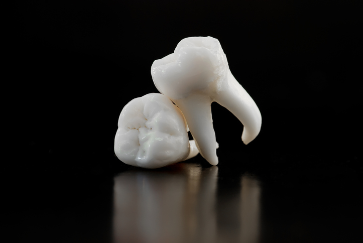 An image of wisdom teeth in Portland Oregon
