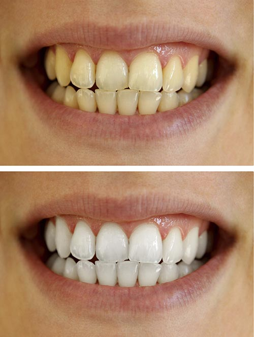 A patients teeth; before and after a teeth whitening treatment.