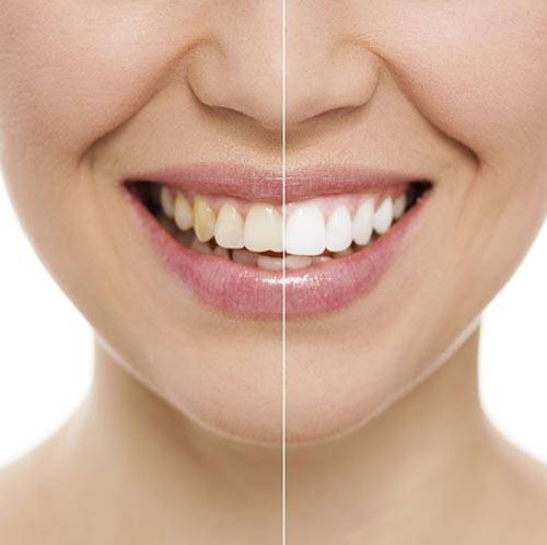 Woman smiling about her successful Teeth Whitening by her dentist in Portland, OR.